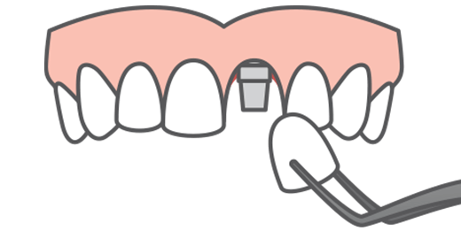 Illustration of front tooth porcelain crown ready to be attached to a dental implant fixture, filling a gap in a smile